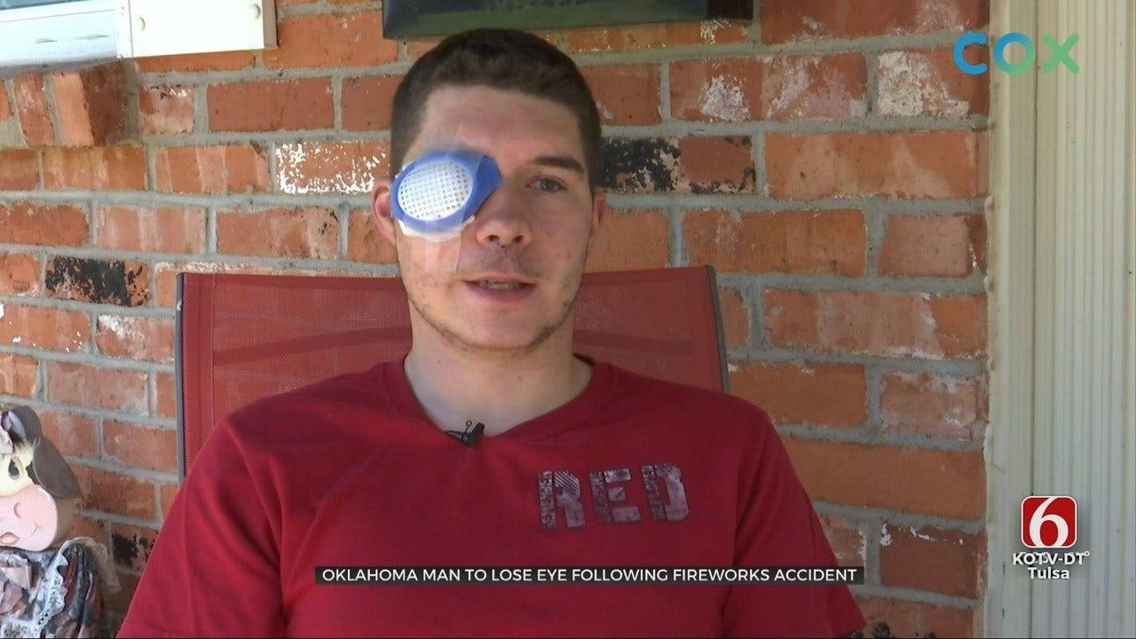 Hominy Man Loses Eye In Fireworks Mishap