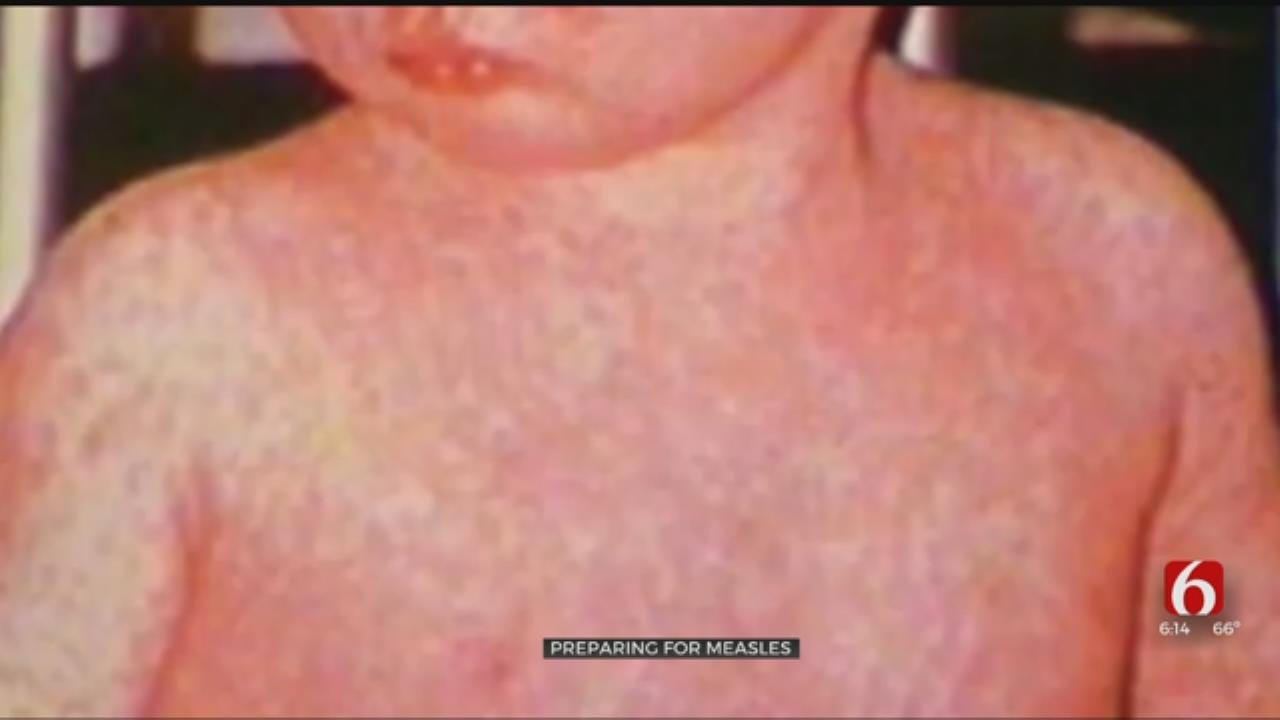 Tulsa County Health Dept. Focusing On Possibility Of Measles