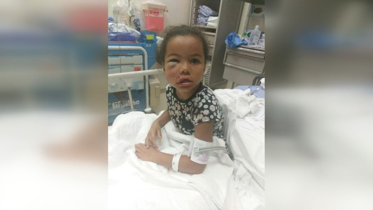 Family Of Child Injured At Muskogee Daycare Frustrated With DHS