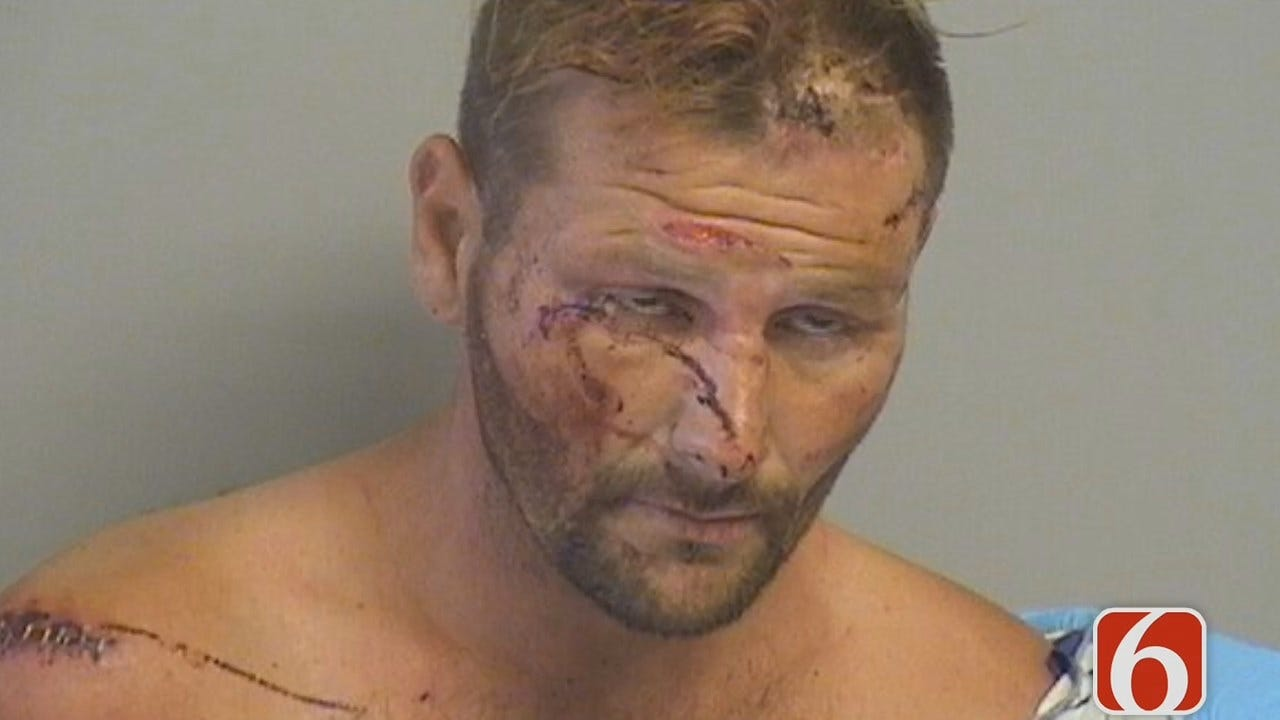 Dave Davis: Man Injures Himself To Avoid Jail, Tulsa Police Say