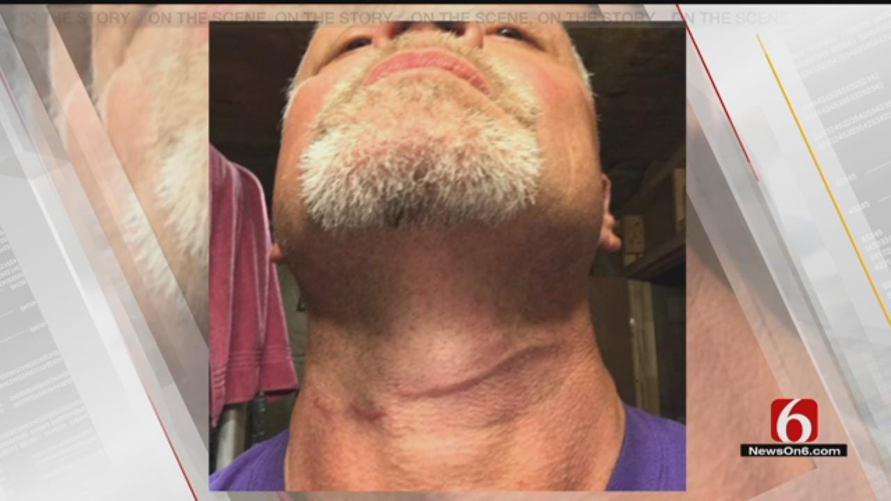 Osage County Man Catches Wire On Neck Riding Motorcycle On Highway