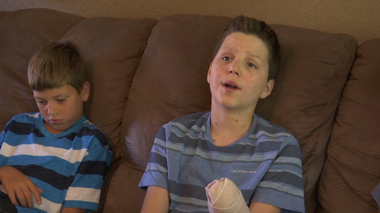 13-Year-Old Boy Loses Hand In Fireworks Accident