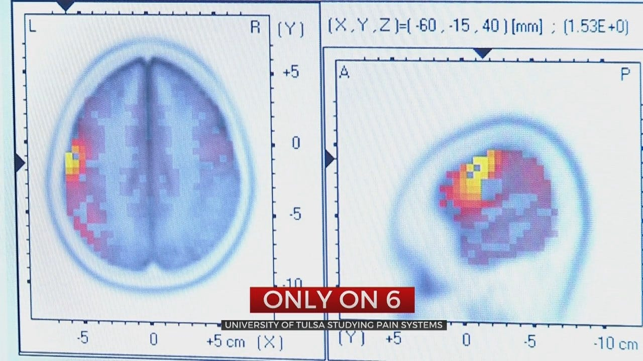 University of Tulsa Searches Chronic Pain Cure