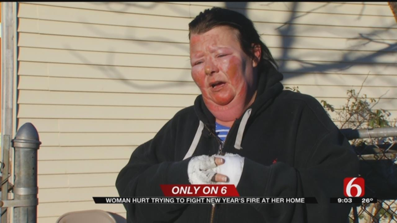 Tulsa Woman Recovering From Burns Suffered In House Fire