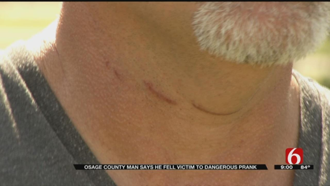 Osage County Man Says He's Lucky To Be Alive After Suspected Prank
