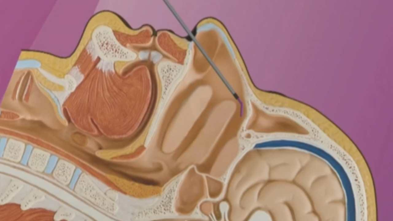 Medical Minute: Treatment Offers Hope For Crippling Migraines