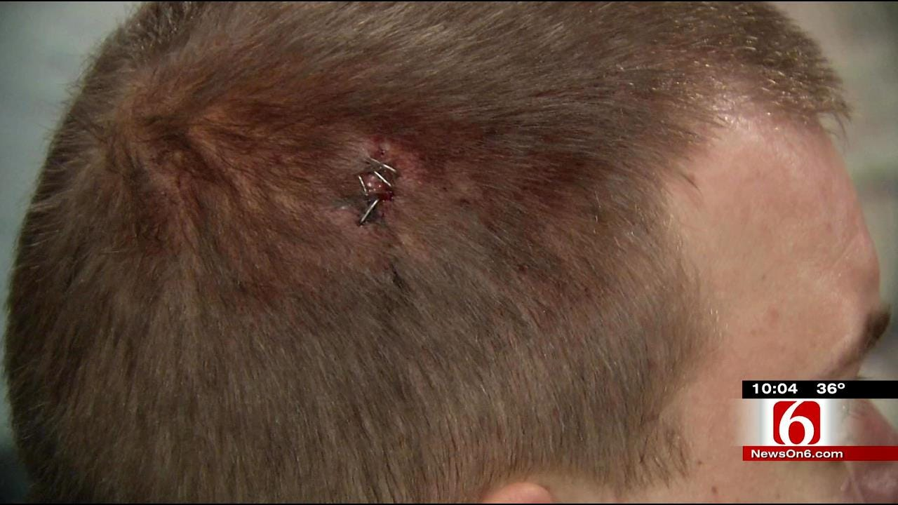 Muskogee Man Shot Attempting To Stop Robbery Has 'No Regrets'