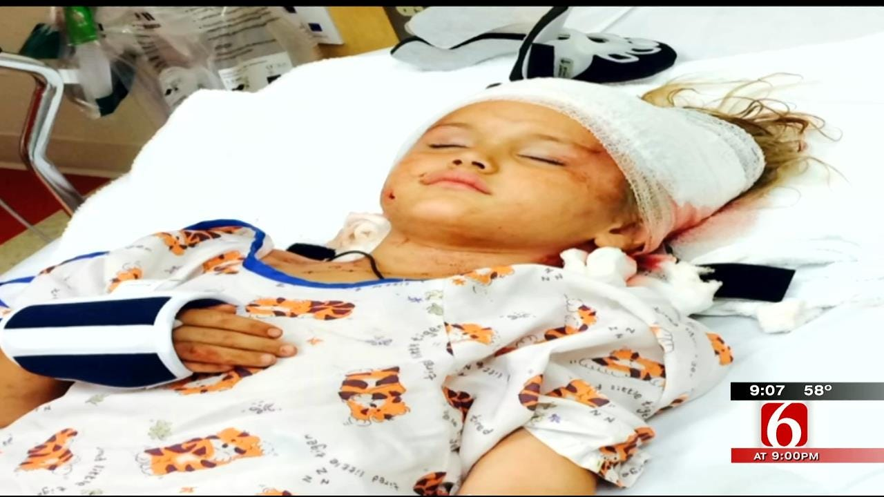 5-Year-Old Collinsville Girl Has 'Hundreds Of Stitches' After Brutal Dog Attack