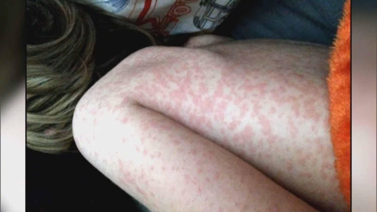Growing Measles Outbreak In Washington Spreading Fear Among Parents