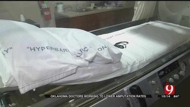 Oklahoma Doctors Work To Lower Amputation Rates