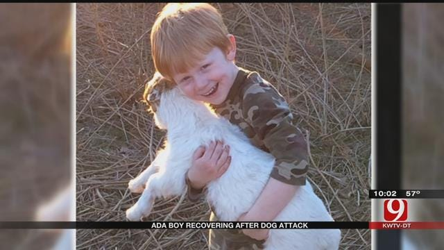 Ada Boy Recovers After Being Mauled By Dogs