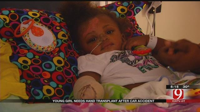 Oklahoma Girl Needs Hand transplant After Car Accident
