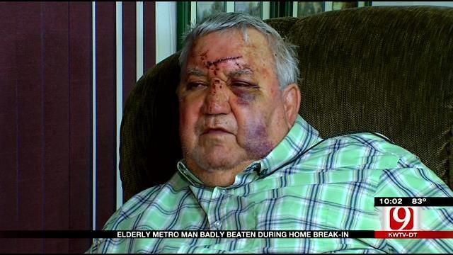 Elderly Metro Man Badly Beaten During Home Break-In