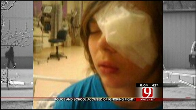 School Beating Results In Serious Injury To Tecumseh Student