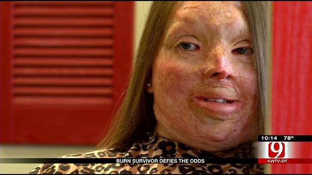 Oklahoma Teen Beats The Odds 15 Years After Severe Burn