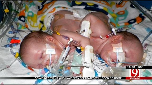 Once Conjoined Twins Still Defying The Odds