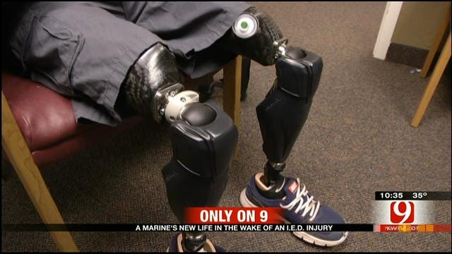 Triple Amputee UK Solider In OKC For New Prosthetics
