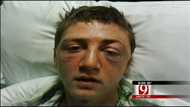 Man Brutally Beaten, Left For Dead At Del City Lake