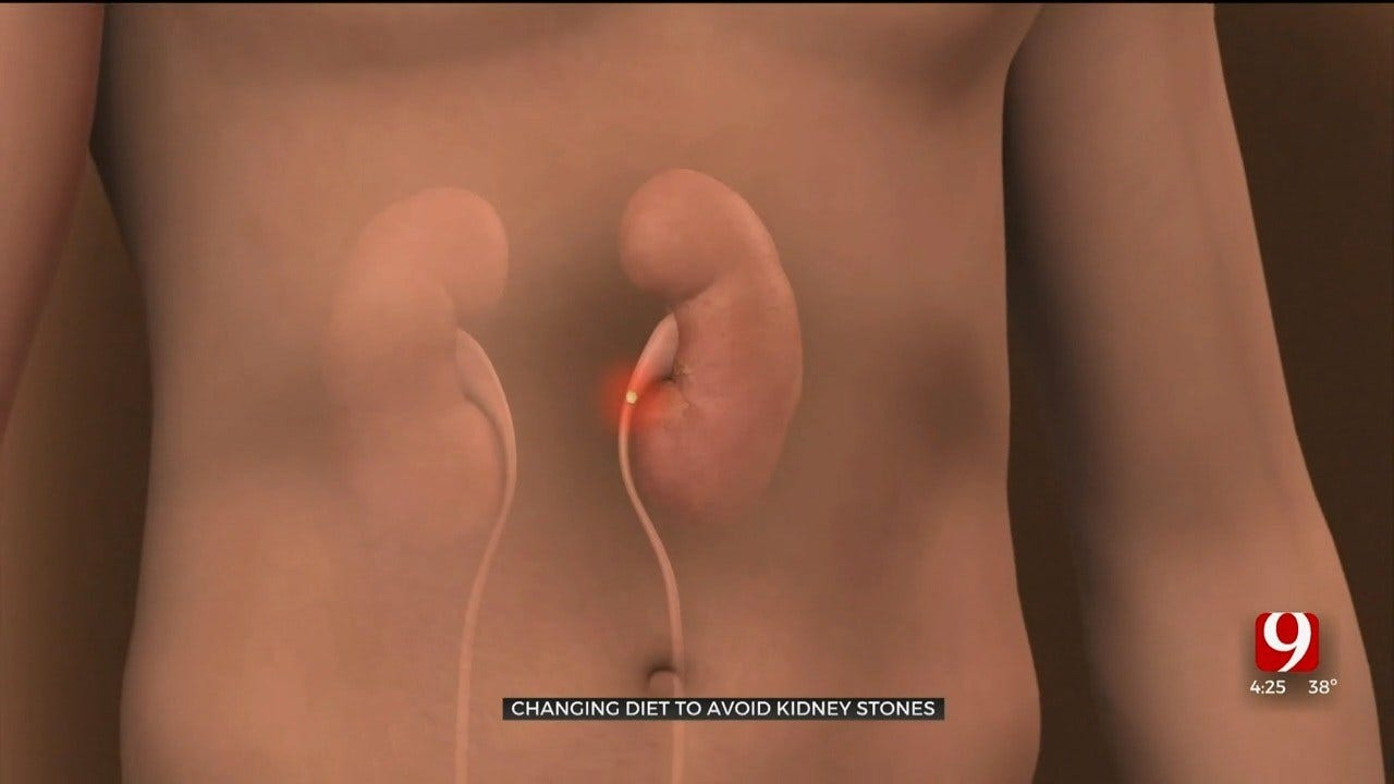Medical Minute: Reducing Your Chances For Kidney Stones