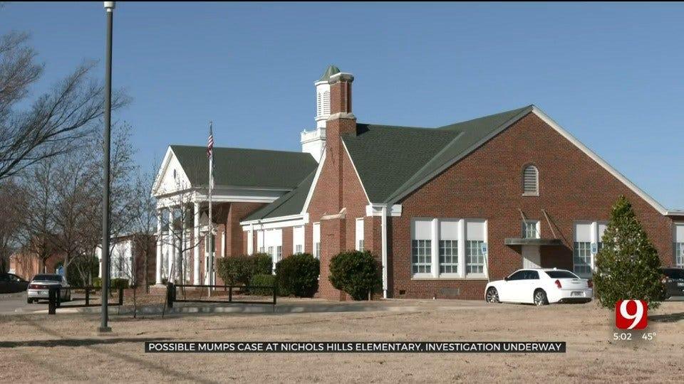 Health Department Investigates Possible Case Of Mumps At Nichols Hills Enterprise Elementary