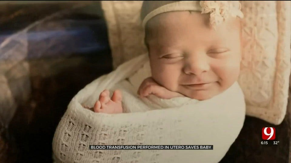 Local Baby Born After Rare In Utero Procedure Thanks To Blood Donors