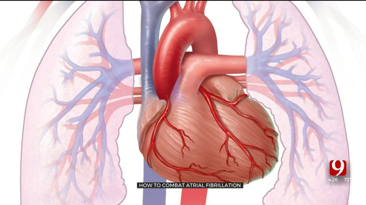 Medical Minute: How To Combat Atrial Fibrillation
