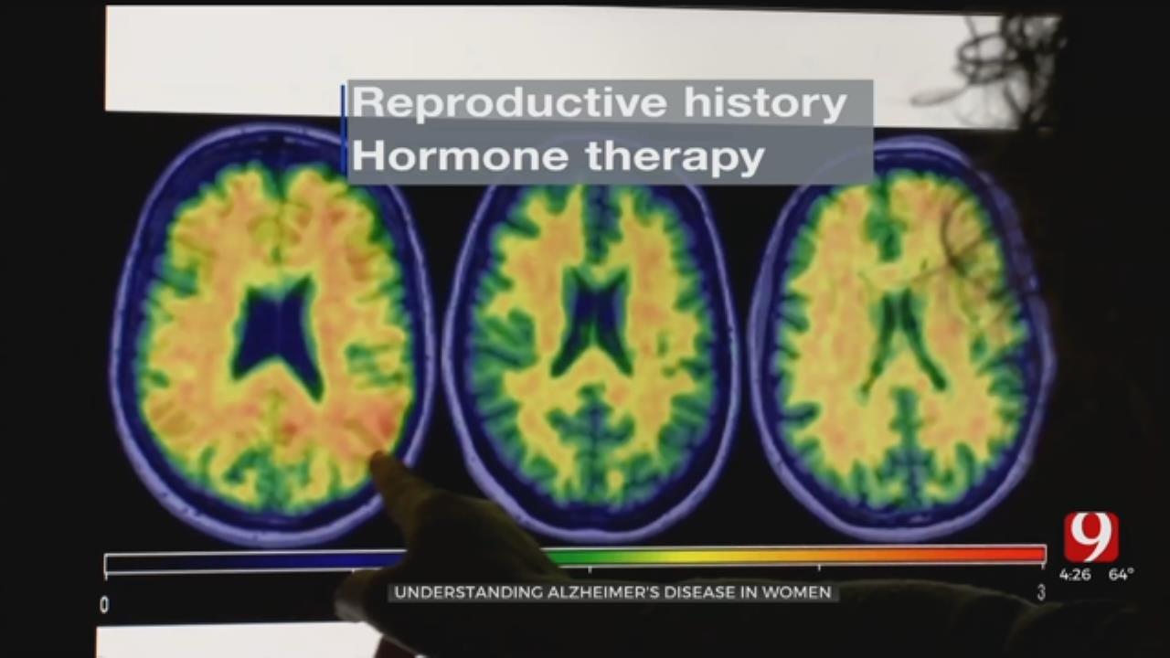 Medical Minute: Women & Alzheimer's