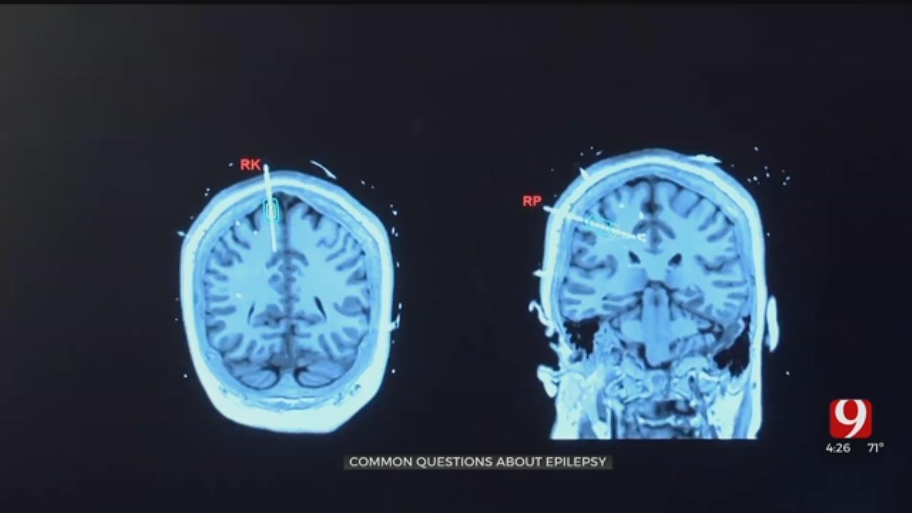 Medical Minute: Epilepsy