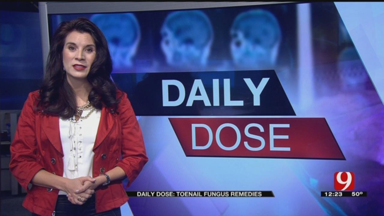 Daily Dose: Toenail Fungus