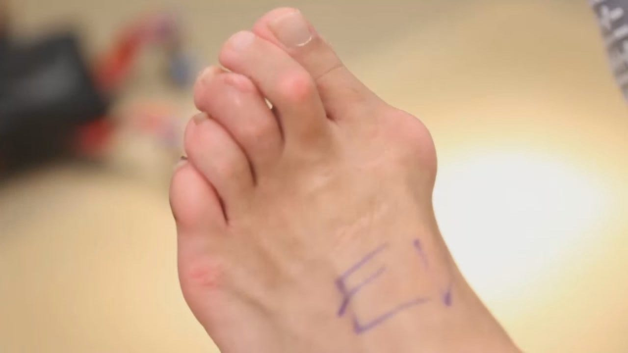 Innovative Procedure Giving Bunion Sufferers Some Relief