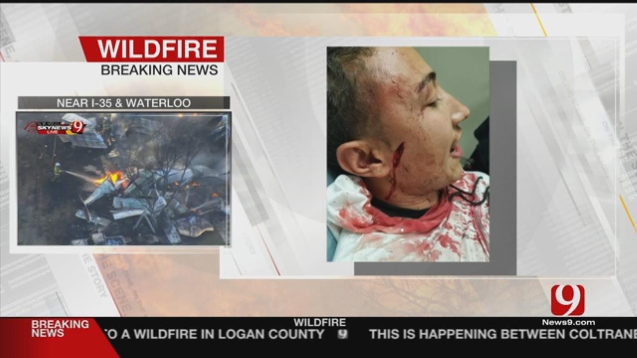 Police Release Body Cam Video Of Metro Club Brawl