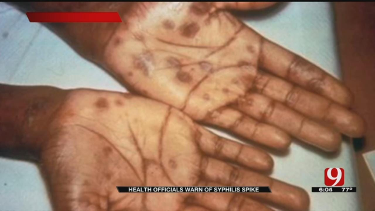 Health Officials Warn Of Syphilis Spike In Oklahoma