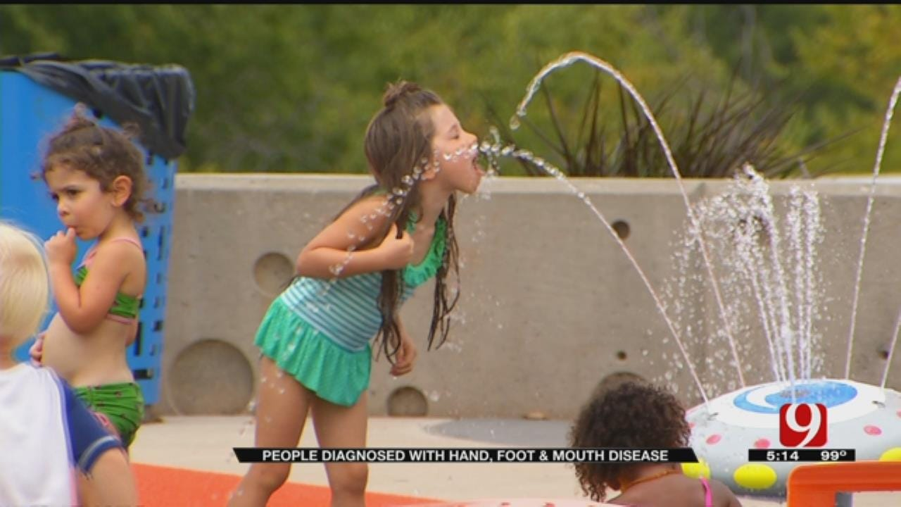 Edmond Families Report new Cases Of Hand, Foot, & Mouth Disease