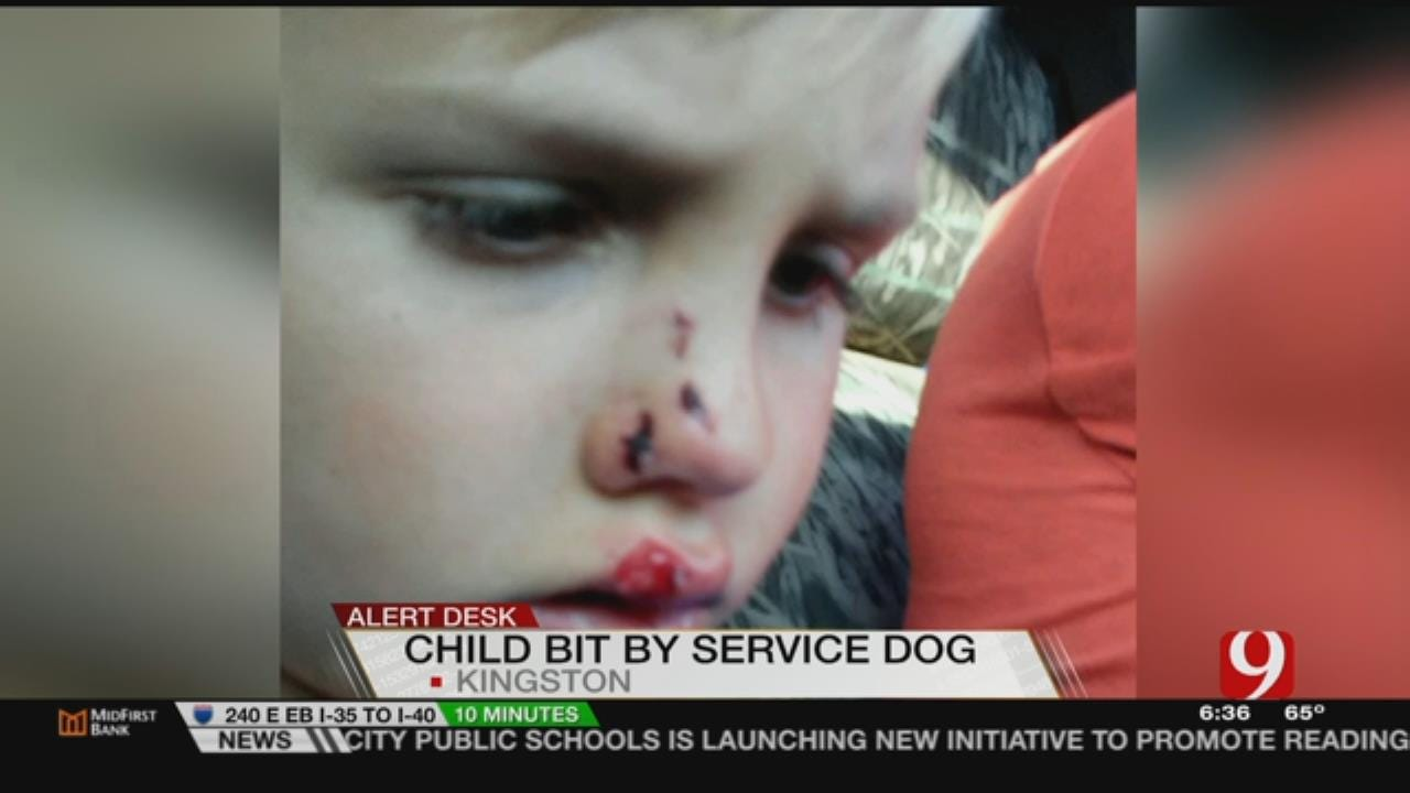 Kingston Boy Recovering After Attack By Service Dog