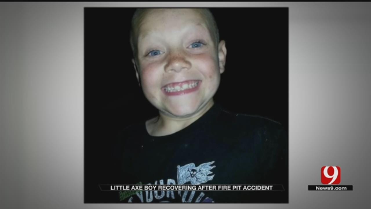 Little Axe Boy Fights To Recover After Suffering Burn Injuries