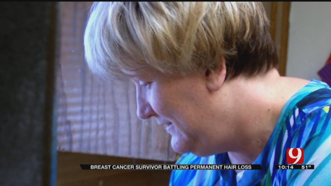 OK Cancer Survivor Joins Permanent Hair Loss Lawsuit
