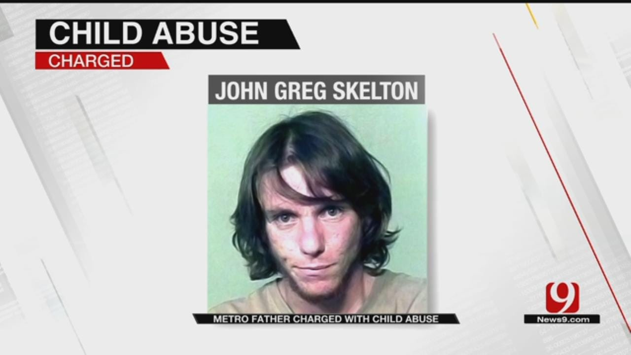 Metro Father Charged With Child Abuse