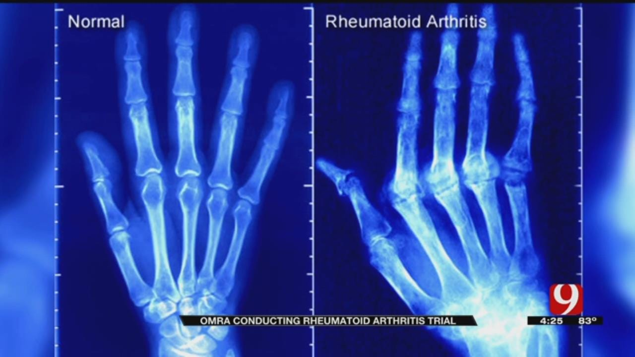 Medical Minute: OMRF Versus RA