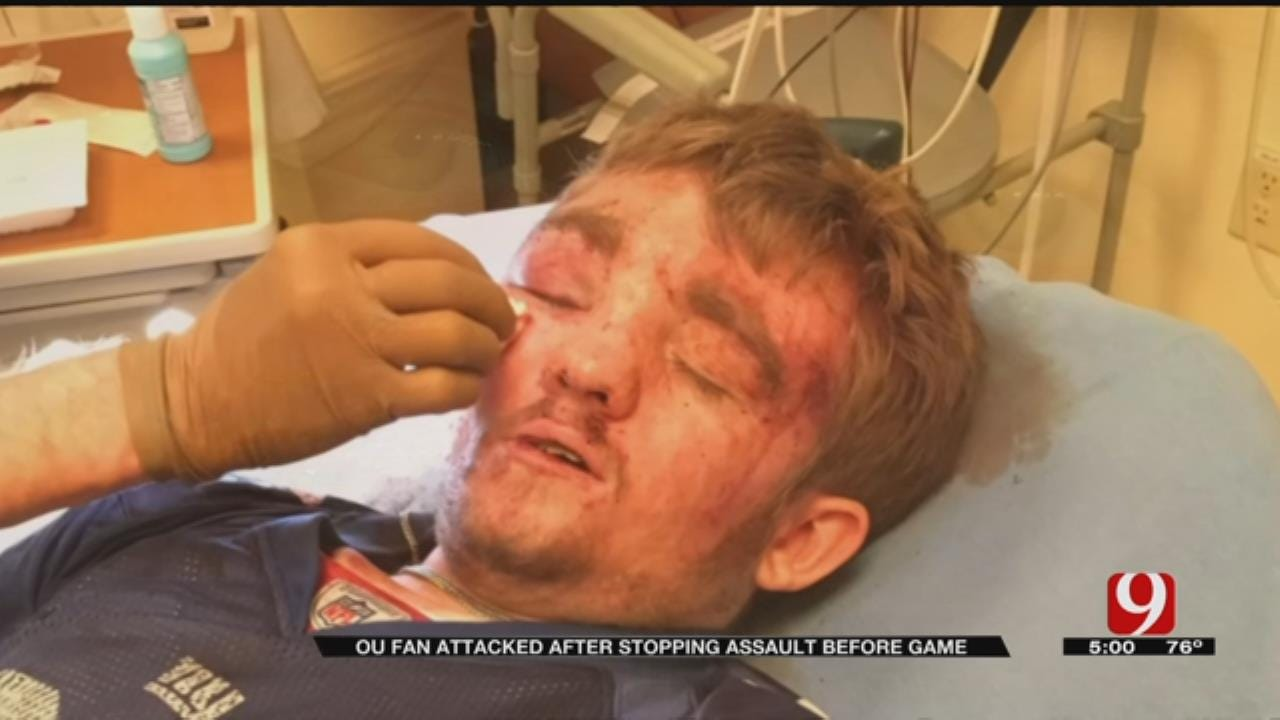 OU Fan Attacked After Stopping Assault Before Game