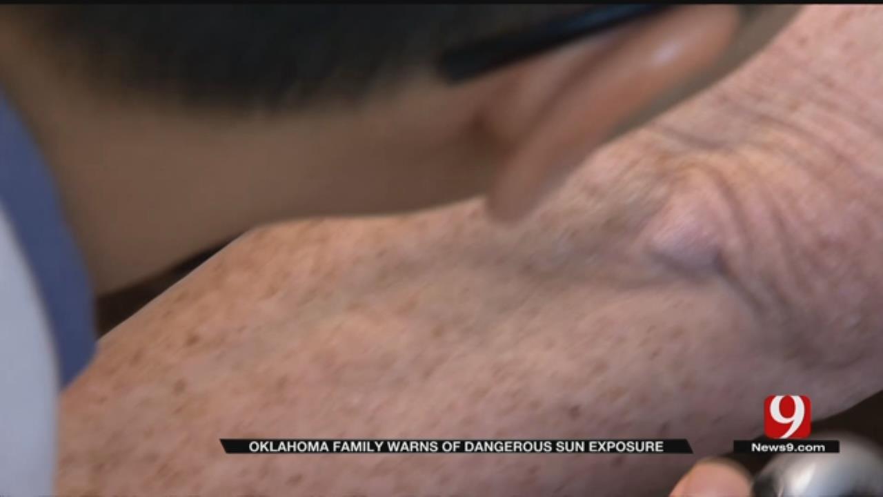 Medical Minute: Melanoma Risk