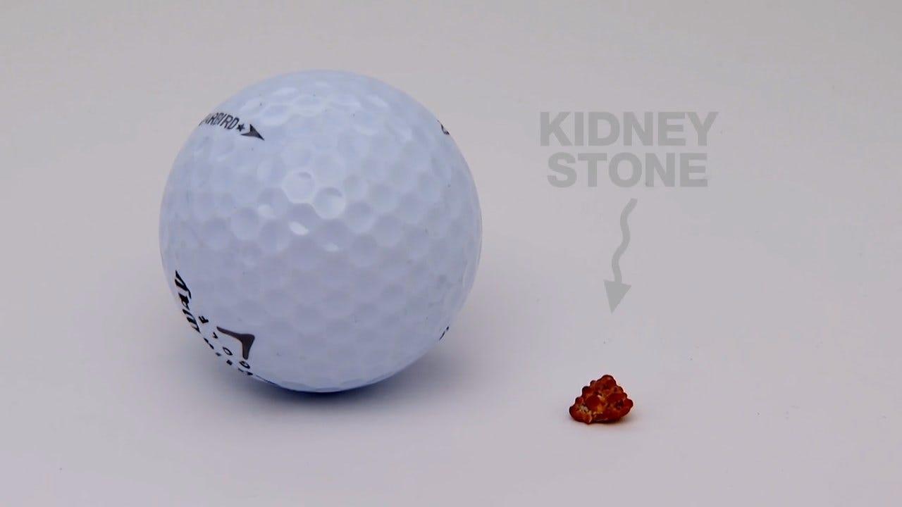 Urologic Specialists Kidney Stone Oct