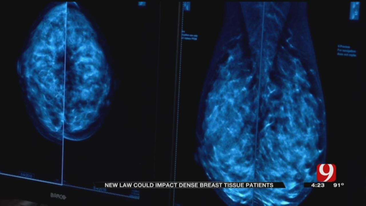 Medical Minute: Breast Tissue Law