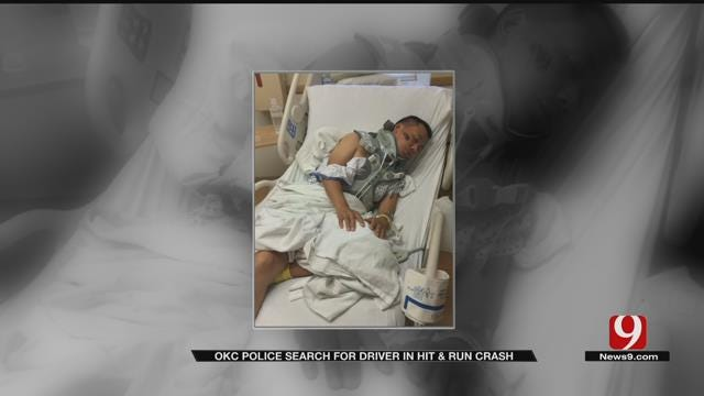 Hit-And-Run Victim Speaks Out After Auto-Pedestrian Crash