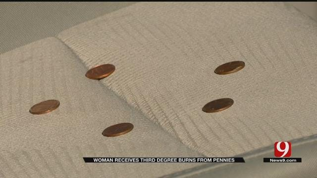 Woman Receives Third Degree Burns From Pennies