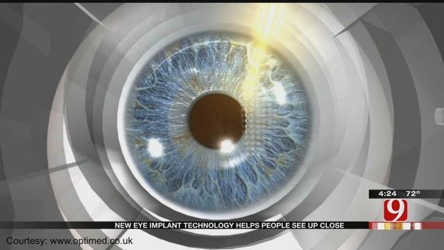 Medical Minute: Vision Implants