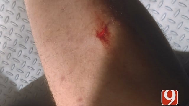Metro Man Says Dogs Attacked Him