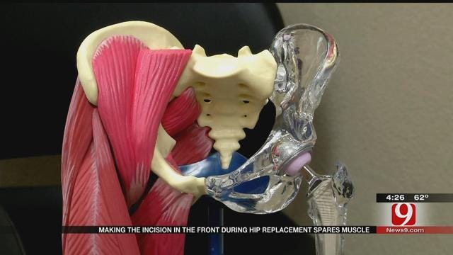 Medical Minute: Hip Replacement