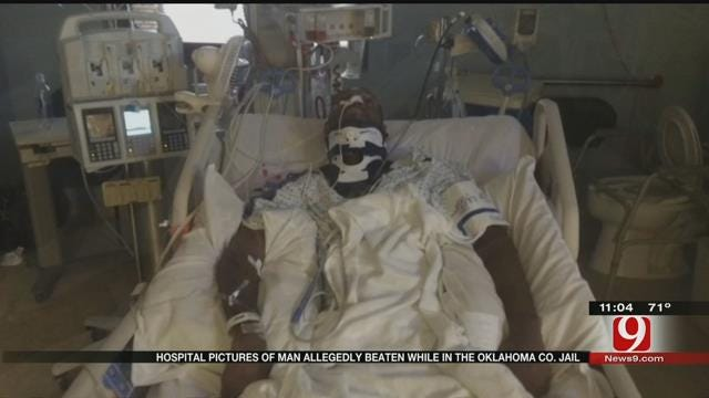 New Photos Of Man Allegedly Beaten In The OK Co. Jail