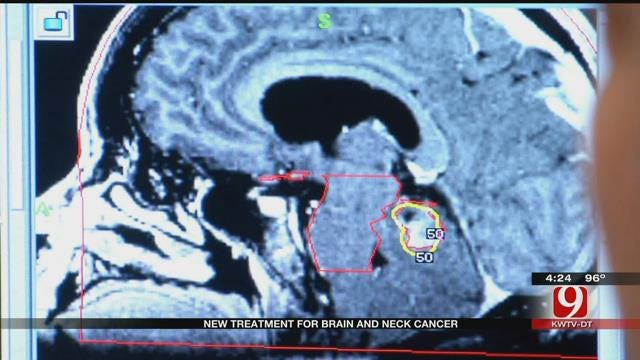 Medical Minute: New Treatment For Brain, Neck Cancer