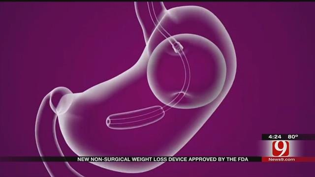 Medical Minute: Belly Balloon